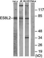 Western blot analysis of extracts from HeLa cells, Jurkat cells and HUVEC cells using ES8L2 antibody