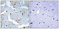 Immunohistochemical analysis of formalin-fixed and paraffin-embedded human brain tissue using FMN2 antibody