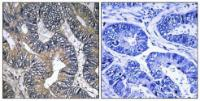 Immunohistochemical analysis of formalin-fixed and paraffin-embedded human colon carcinoma tissue using GTPBP2 antibody
