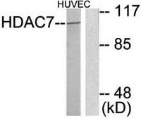 Western blot analysis of extracts from HuvEc cells using HDAC7 antibody
